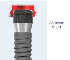 Abutment Height