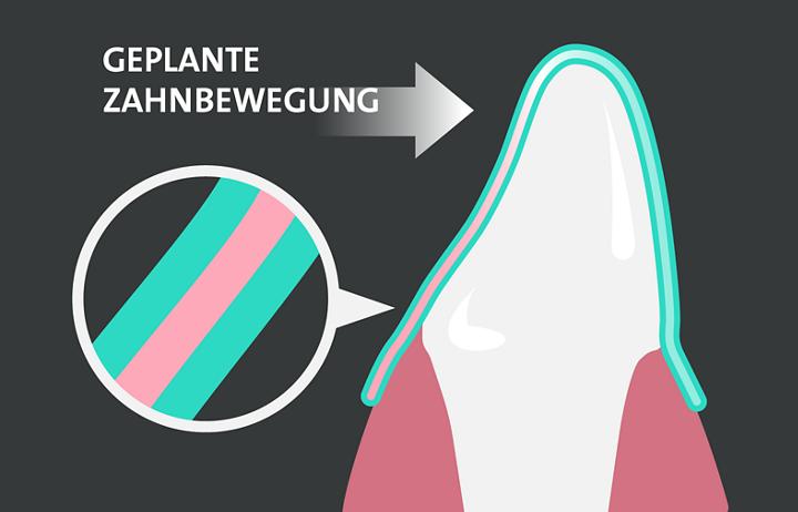 Geplante Zahnbewegung Aligner