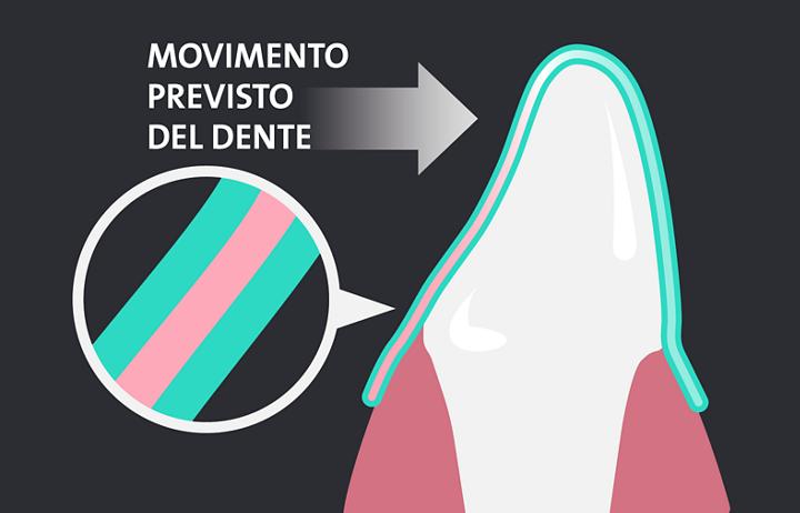 movimento previsto del dente