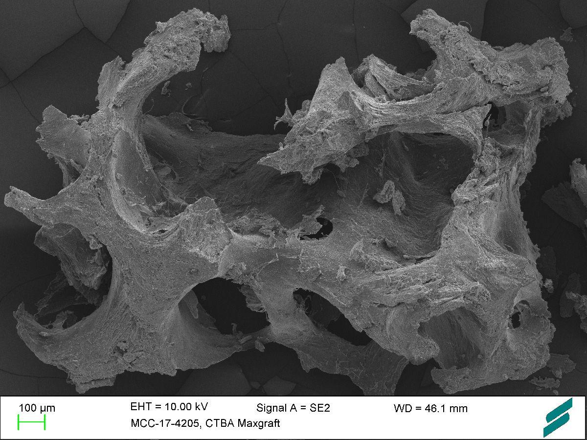 Abb.1: Spongiöse Alogtaftpartikel in Verwendung als dentales Knochenersatzmaterial