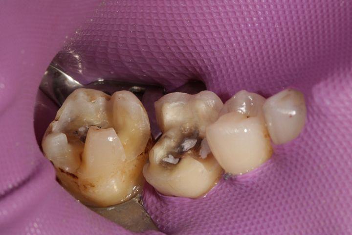 Abb. 11 Die Zähne sind zum adhäsiven Eingliedern der glaskeramischen Restaurationen konditioniert