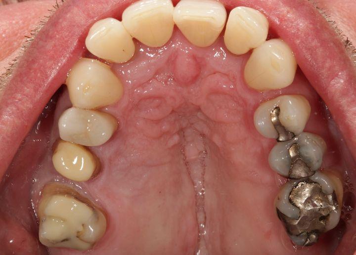 Abb. 2 und 3 Der Patient wünschte den Austausch der großflächigen Amalgamfüllungen mit vollkeramischen Restaurationen