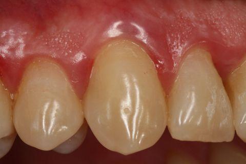 Abb. 1: Klinischer Ausgangsbefund Zahn 13 nach erfolgter PAR-Vorbehandlung.