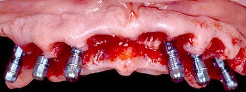Abb. 22: Die Implantate wurden gesetzt