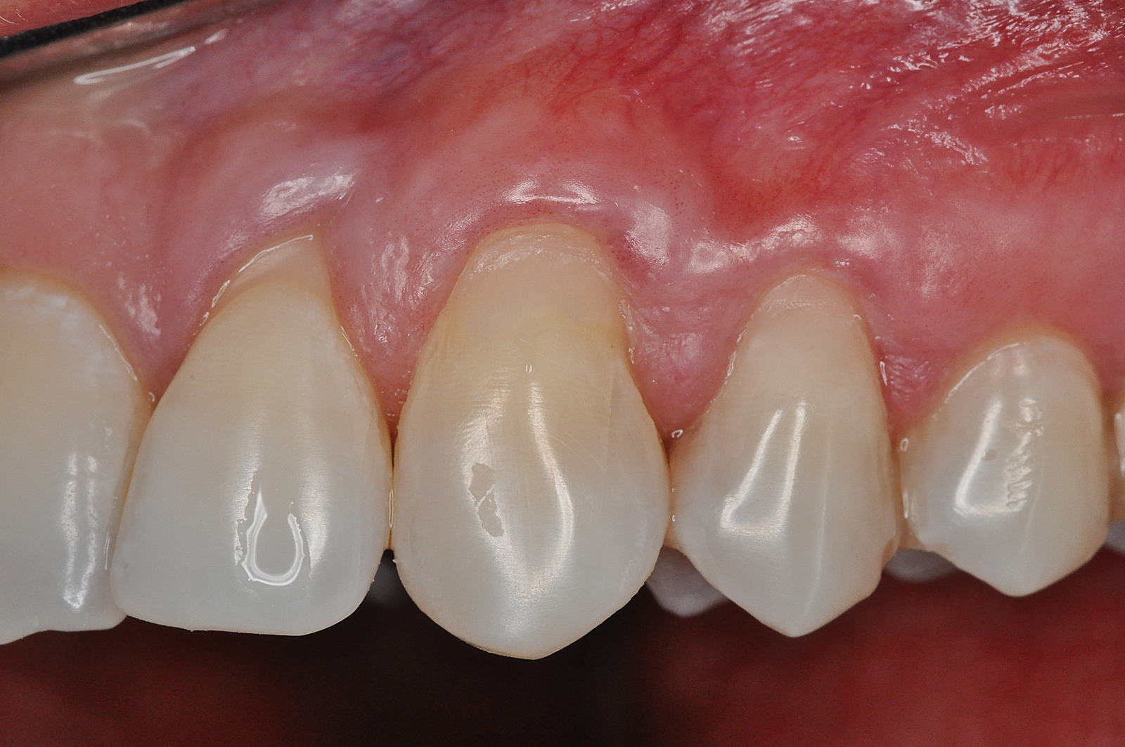 Treatment of two adjacent infrabony defects with Straumann® Emdogain®