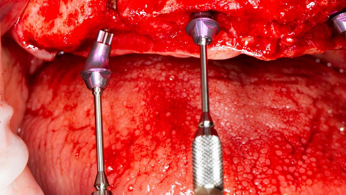 Placement of the Screw-retained Abutments (courtesy of M. Laureti and N. Ferrigno).