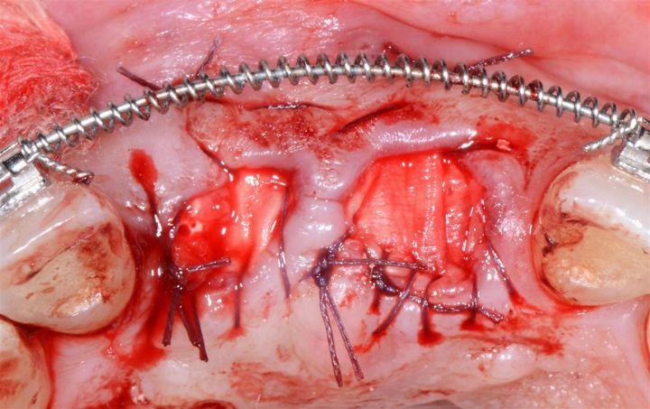 Abb. 10: Die Jason® membrane ist auch für die Ridge Preservation indiziert (Fall von Dr. Damir Jelušić, Opatija, Kroatien).