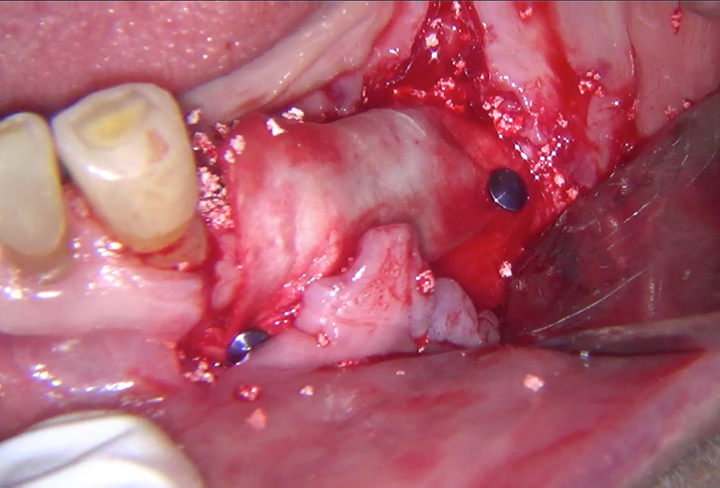 Abb. 9: Die Membran wurde in Verbindung mit botiss maxresorb® verwendet und mit autogenem Knochen gemischt.